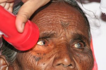 Pre checkup with a patient with cataract copyright © Hamara Bandhan e.V.
